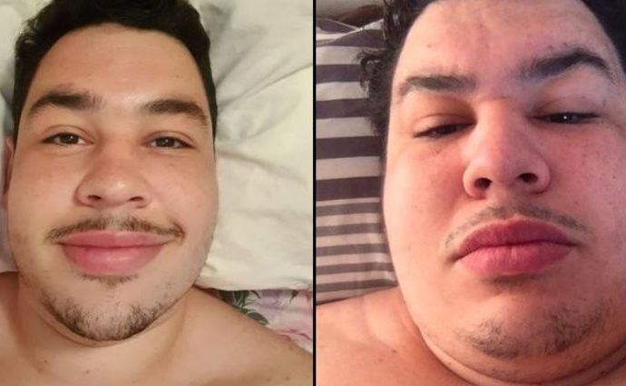 Greekgodx weight loss before and after.