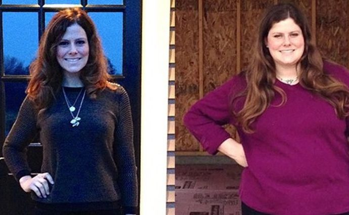 Rachel Frederickson lost 155 lbs during her participation in The Biggest Loser.